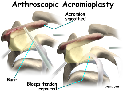 http://www.eorthopod.com/sites/default/files/images/shoulder_biceps_tendonitis_surg08.jpg