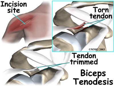 http://www.eorthopod.com/sites/default/files/images/shoulder_biceps_tendonitis_surg03.jpg