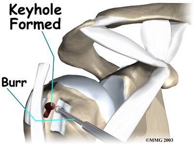 http://www.eorthopod.com/sites/default/files/images/shoulder_biceps_tendonitis_surg05.jpg